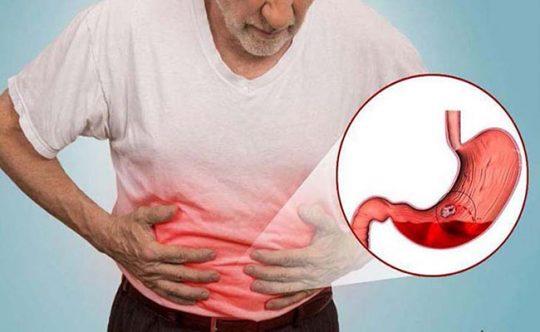 Nguyên nhân đau dạ dày dữ dội