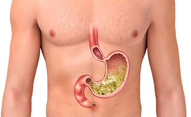 Vị trí, chức năng của dạ dày