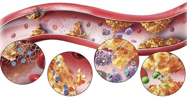 Rối loạn lipid máu có thể gây nên bệnh tiểu đường