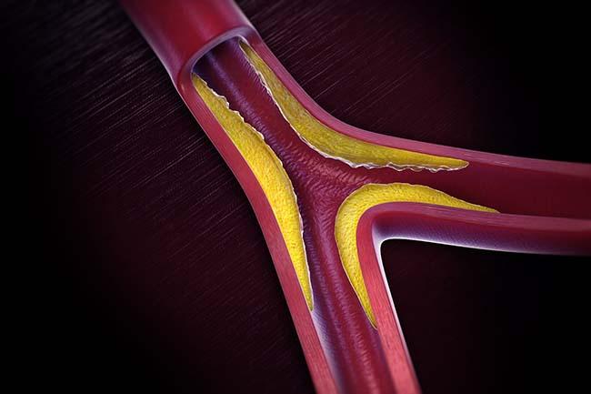 Các mảng bám hình thành trong lòng động mạch