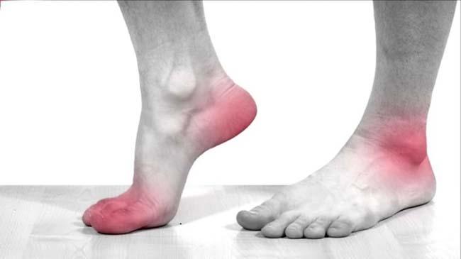 Đâu là dấu hiệu của biến chứng tiểu đường ở chân?
