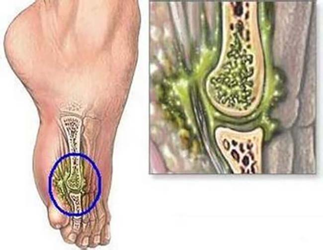 Nhiễm trùng xương do tiểu đường