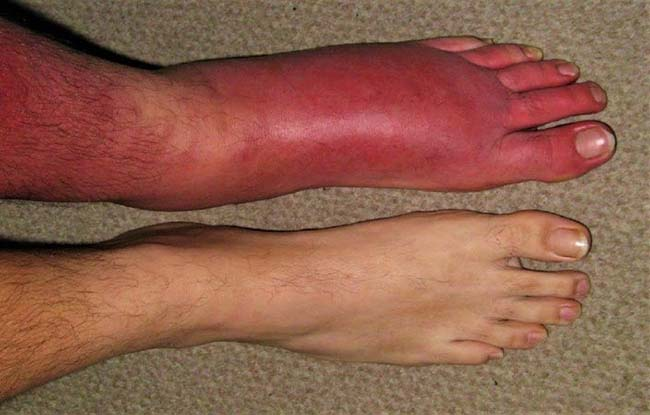 Sưng phù, thay đổi màu sắc của chân