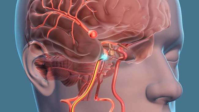 Tai biến mạch máu não do mỡ máu cao