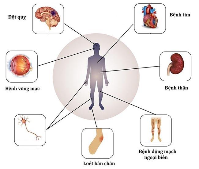 Một số biến chứng bệnh tiểu đường