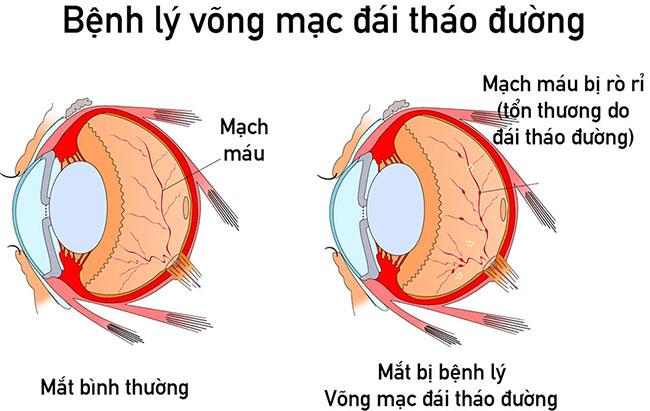 Mắt không nhìn rõ, mạch máu ở mắt bị xuất huyết là dấu hiệu của bệnh lý võng mạc của người mắc đái tháo đường