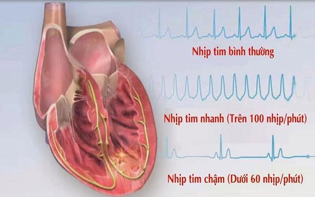 Nhịp tim nhanh trên 100 nhịp/ phút biểu thị bệnh lý thần kinh tự động tim mạch