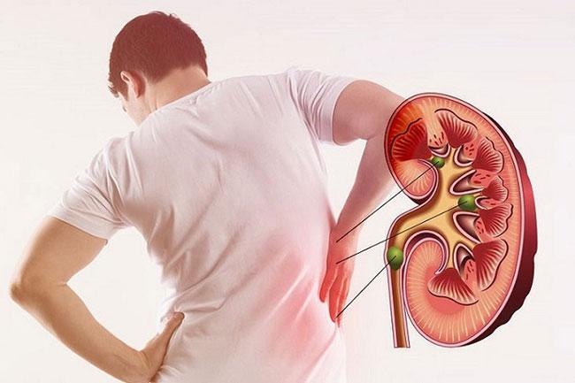 Suy thận là một biến chứng mạch máu nhỏ ở người đái tháo đường hay mắc nhất