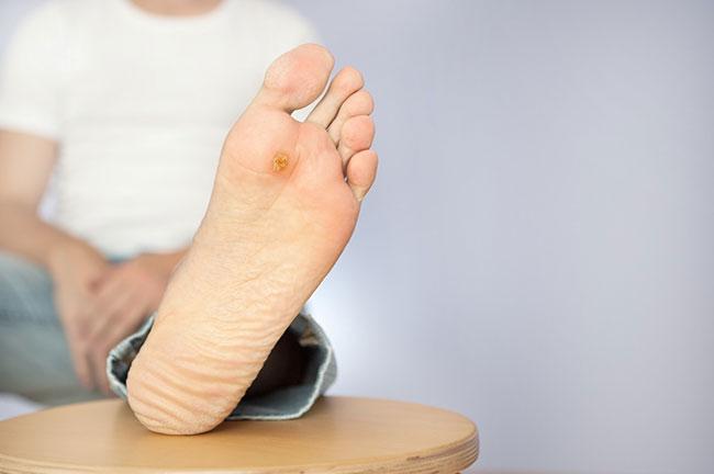 Biến chứng bàn chân do bệnh tiểu đường gây ra