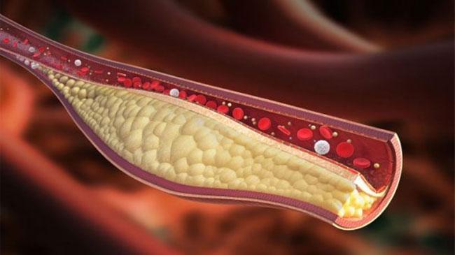 Xơ vữa mạch máu có thể xuất phát từ bệnh tiểu đường
