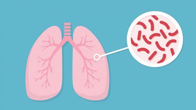 Bệnh lao phổi do nguyên nhân vi khuẩn lao xâm nhập vào cơ thể