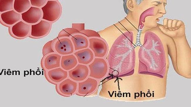 Bệnh viêm phổi ở bệnh nhân đái tháo đường có biểu hiện theo ho có đờm và sốt, khó thở