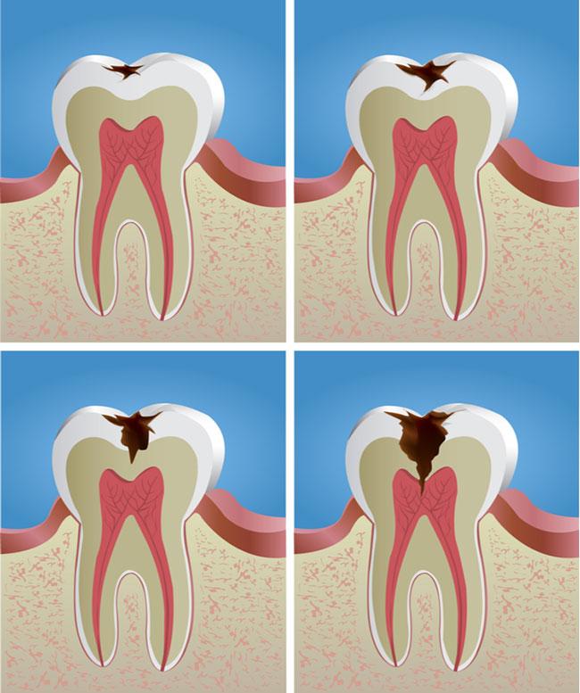 Không kiểm soát đường huyết sẽ làm nặng thêm tình trạng sâu răng
