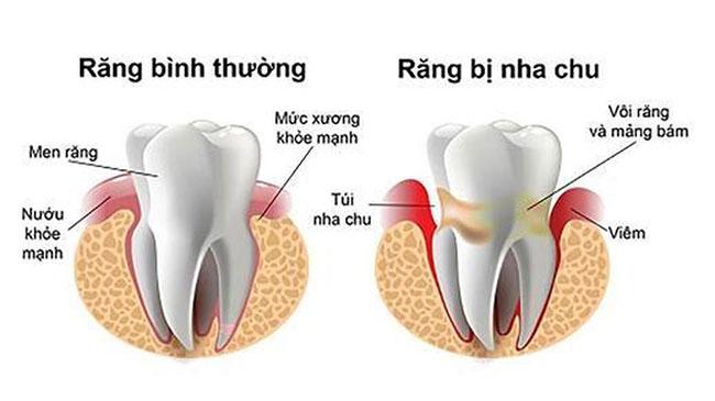 Viêm nha chu không được chữa trị sớm gây răng yếu nguy cơ rụng răng cao