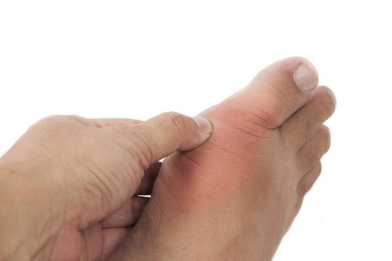 Bệnh gout có truyền nhiễm hay di truyền không?