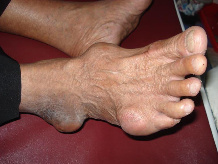 Bệnh gout có lây truyền hay di truyền không?
