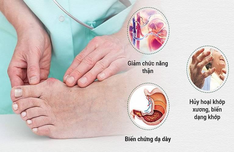 Bị gut có nên mổ không