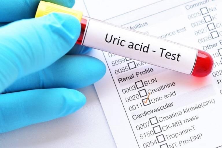 Chỉ số acid uric bao nhiêu là bị gút