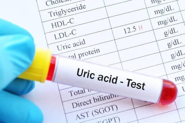 Axit uric trong máu tăng lên cao là tình trạng nghiêm trọng, có thể gây nên nhiều vấn đề